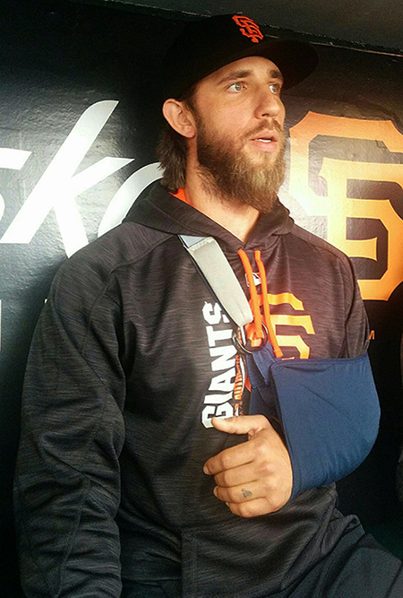 ©RYAN LEONG Giants ace Madison Bumgarner appears in the dugout prior to Monday's 2-1 loss to the Dodgers. Bumgarner's injuries in a dirt-bike riding accident on an off day last week in Denver are expected to keep him off the mound until after the All-Star Game.